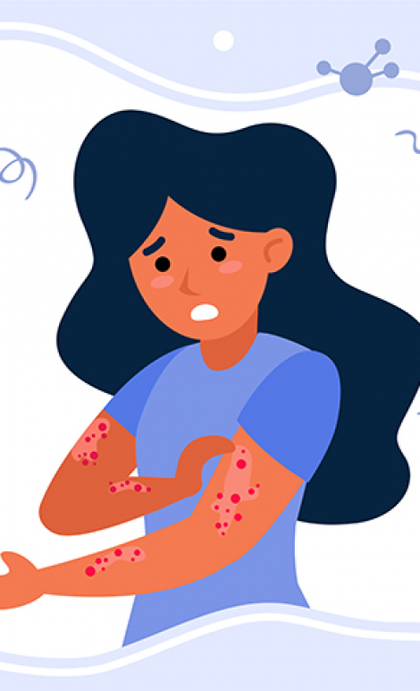 Person suffering from rush. Hives, fever, stress, chickenpox flat vector illustration. Illness, epidemics, virus concept for banner, website design or landing web page